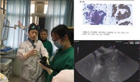 医院消化内镜诊疗部成功开展超声内镜活检穿刺术