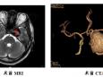 我院外六科成功救治1例脑内巨大动脉瘤