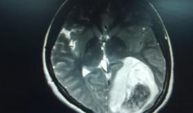 我院外六科中西医结合成功救治一恶性脑肿瘤并脑疝危重患者
