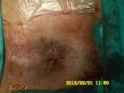 肛肠科诊疗特色