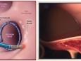 """房顫患者預防卒中的利器——左心耳封堵術  廣西中醫藥大學第一附屬醫院成功完成兩例房顫射頻消融+左心耳封堵""""一站式""""手術"""