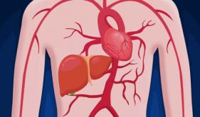 原发性肝癌科普介入科普